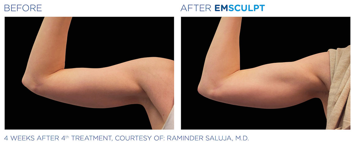 EMSculpt before and after pictures
