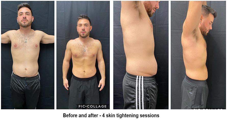 skin tightening - before and after